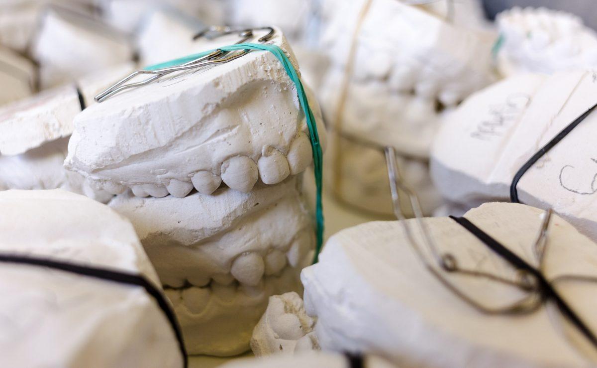 Zła metoda żywienia się to większe braki w jamie ustnej oraz dodatkowo ich utratę